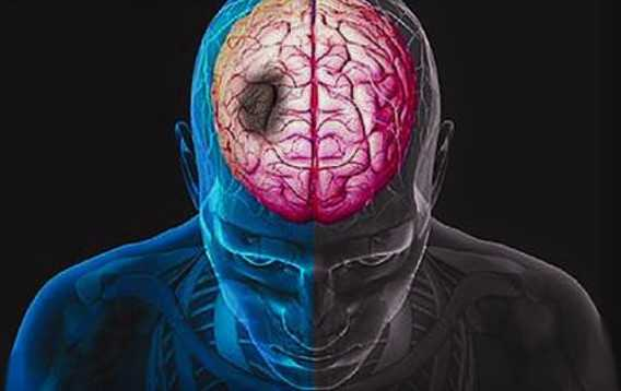 Stroke: a promising new drug combination